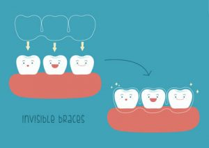 Adult Braces Are Growing In Popularity Annually